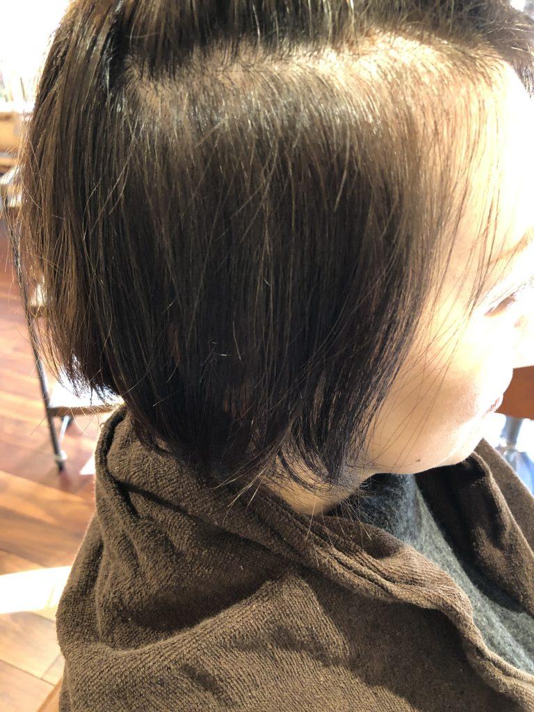 水素ケア5回目終了で既に黒髪が!