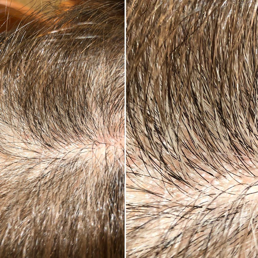 色素幹細胞にアタック!白髪が黒髪に⁈