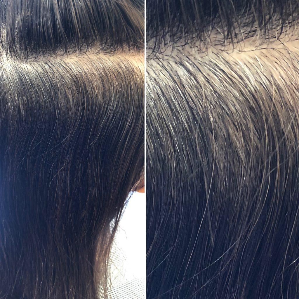 水素による白髪減少効果