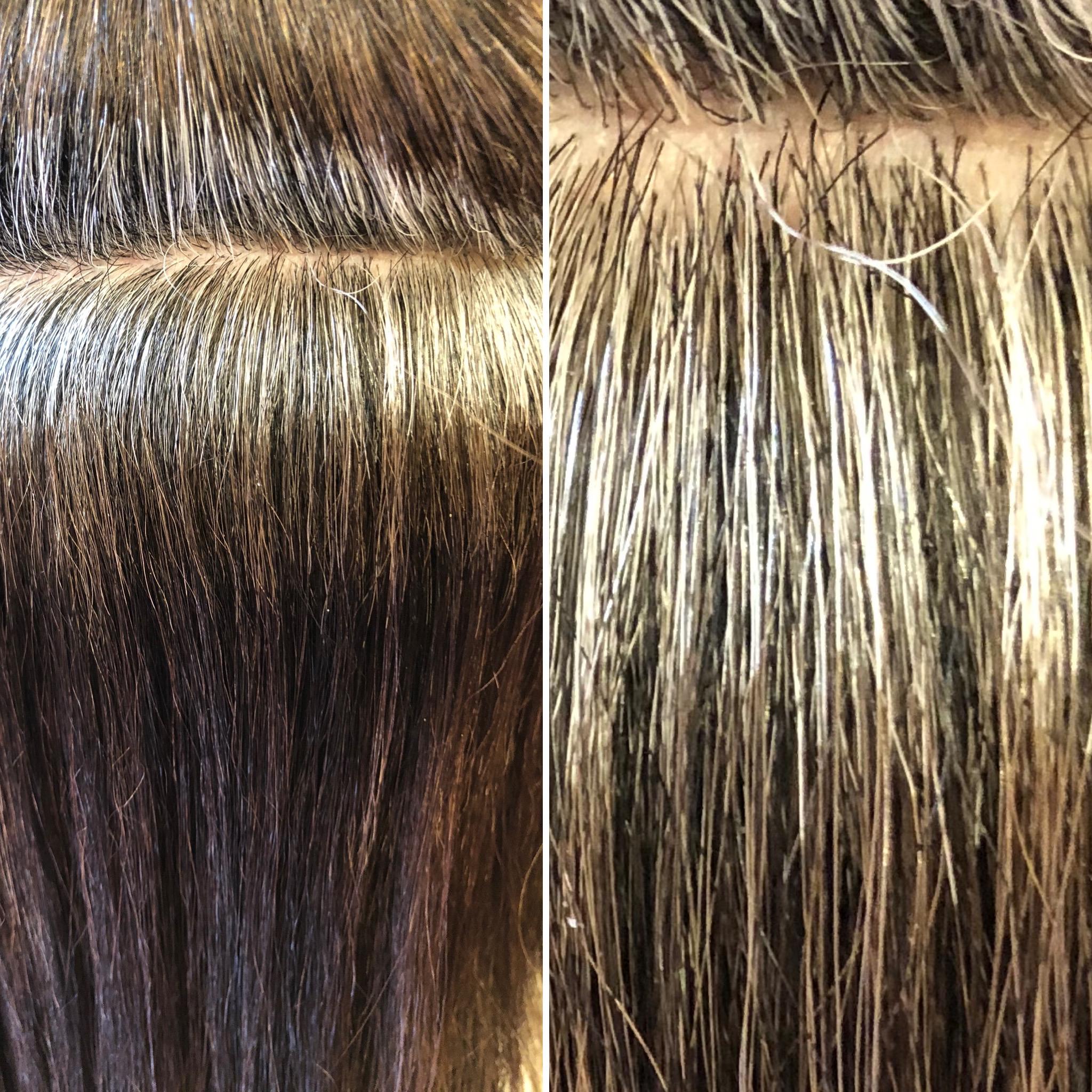 白髪から黒髪へシフト出来るのは高発生水素だけです!