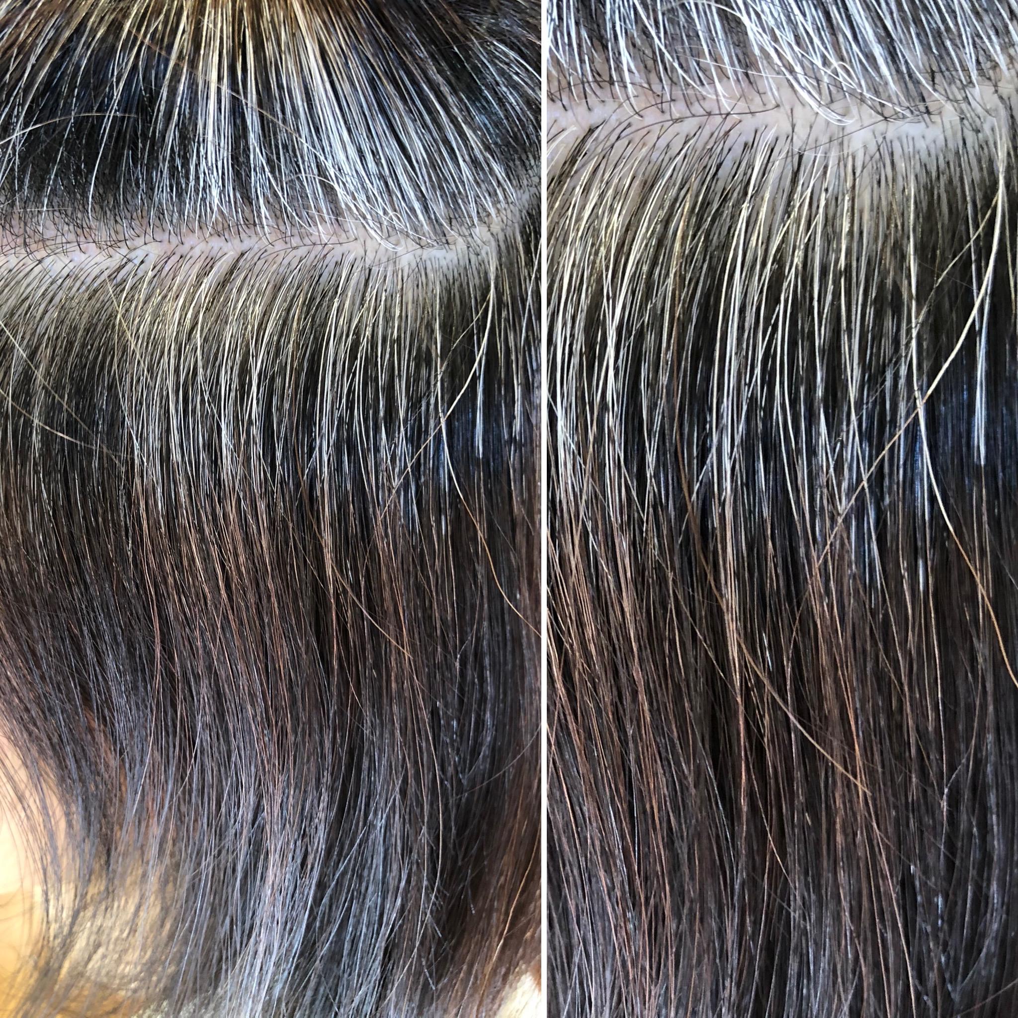白髪から黒髪に戻ります!高発生水素SO-CARE