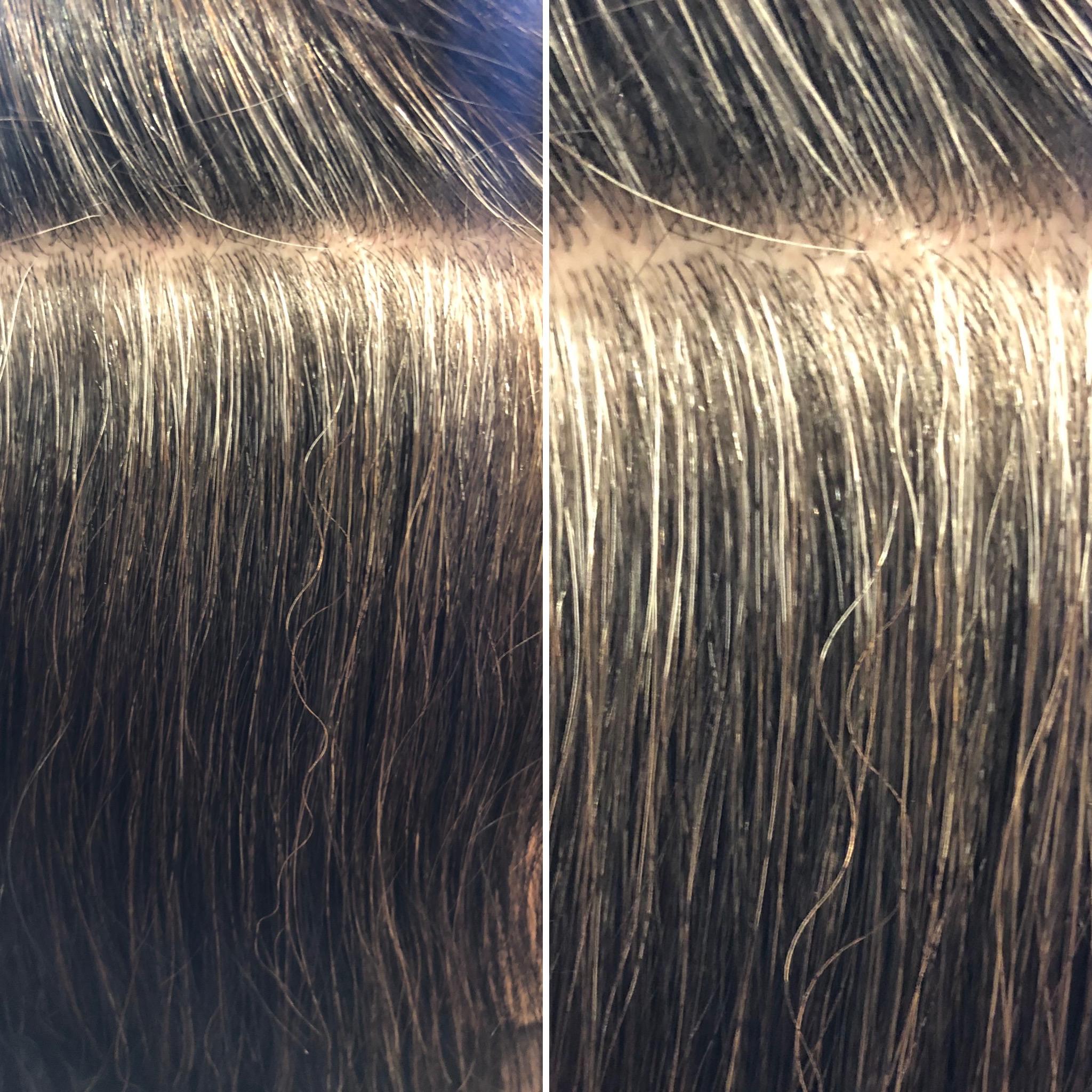 高発生水素SO-CARE継続で確実に白髪から黒髪へ!