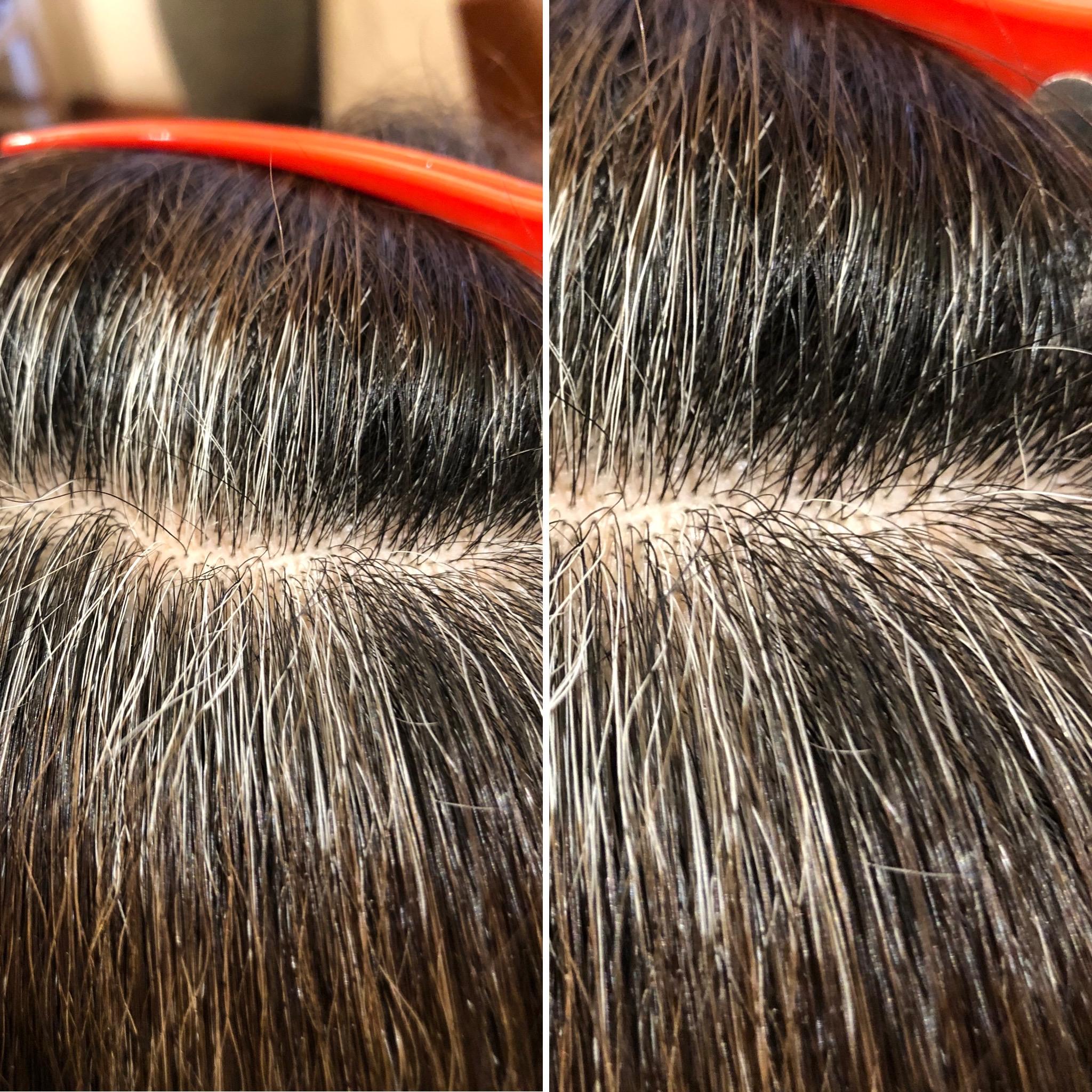 パネル状に黒髪が確認出来てます!高発生水素SO-CARE