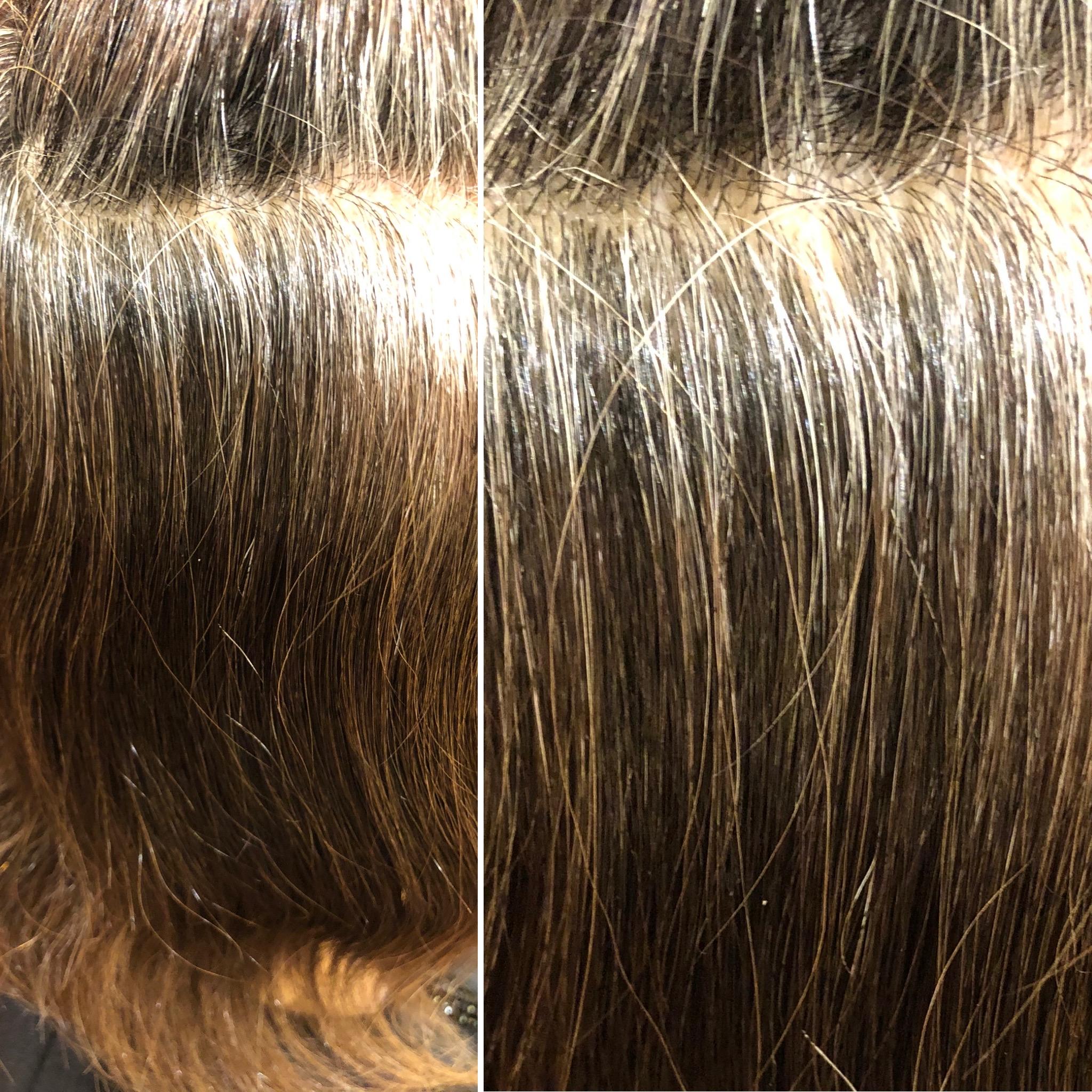 高発生医療水素SO-CAREで白髪を減らせる時代です!