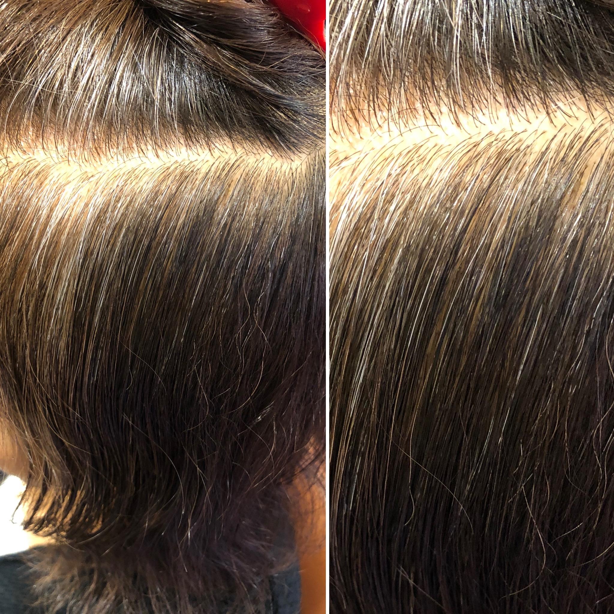 白髪を減らすならANT HAIRへ!