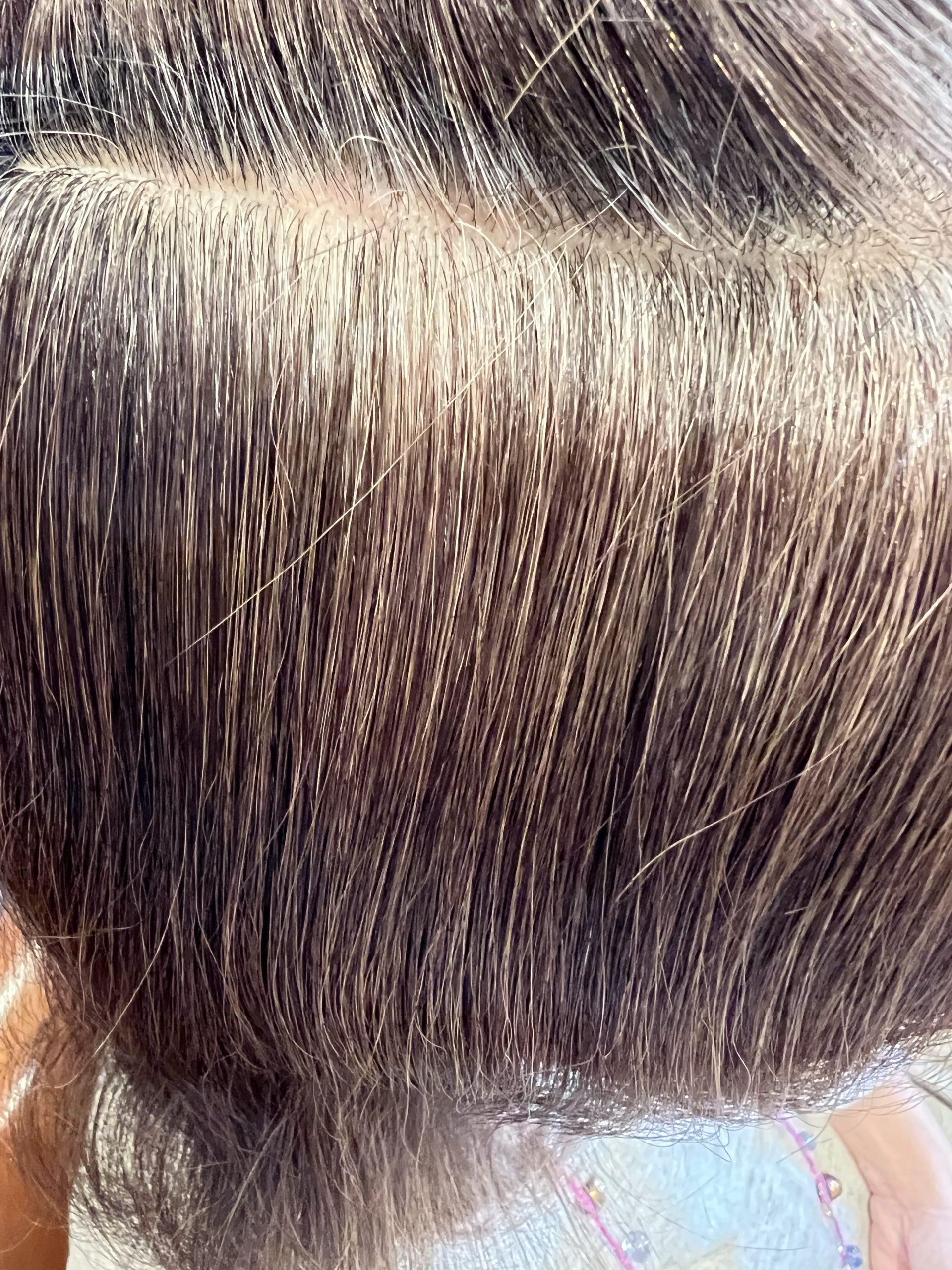 高発生医療水素SO-CAREで黒髪続々!